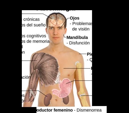 fibromialgia_es